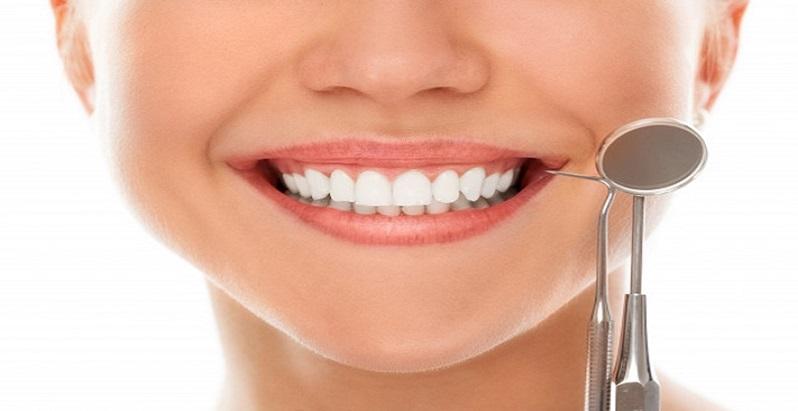 Apeleaza cu incredere la serviciile de estetica dentara!